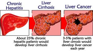 cirrhosis of the liver life expectancy