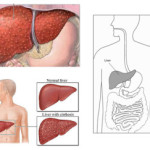 Micronodular Cirrhosis of the Liver
