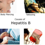 Hepatitus B and Cirrhosis of the Liver
